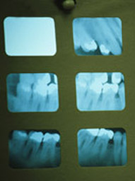oral_tech_xrays