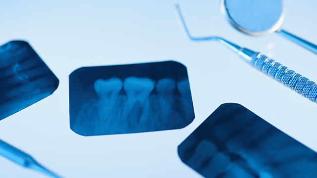 Your Teeth From the Inside Out: The Purpose of Dental X-Rays